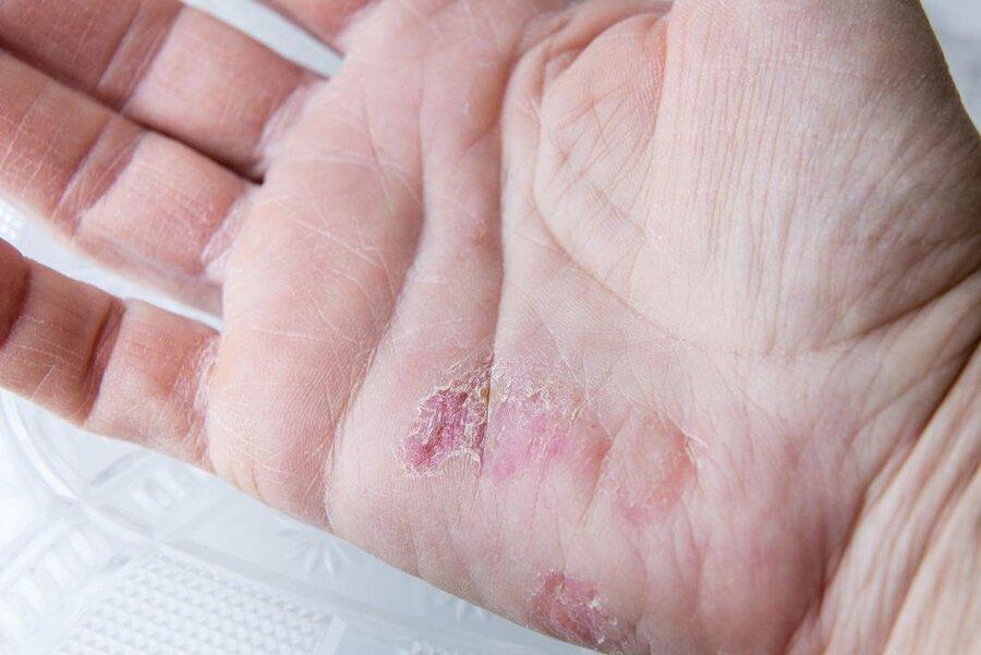 نکته بهداشتی: پیشگیری از جوش های پوستی زمستانی